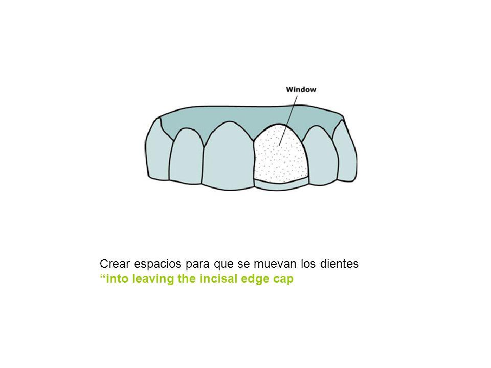 Crear espacios para que se muevan los dientes into leaving the incisal edge cap