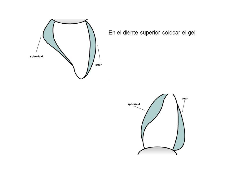 En el diente superior colocar el gel