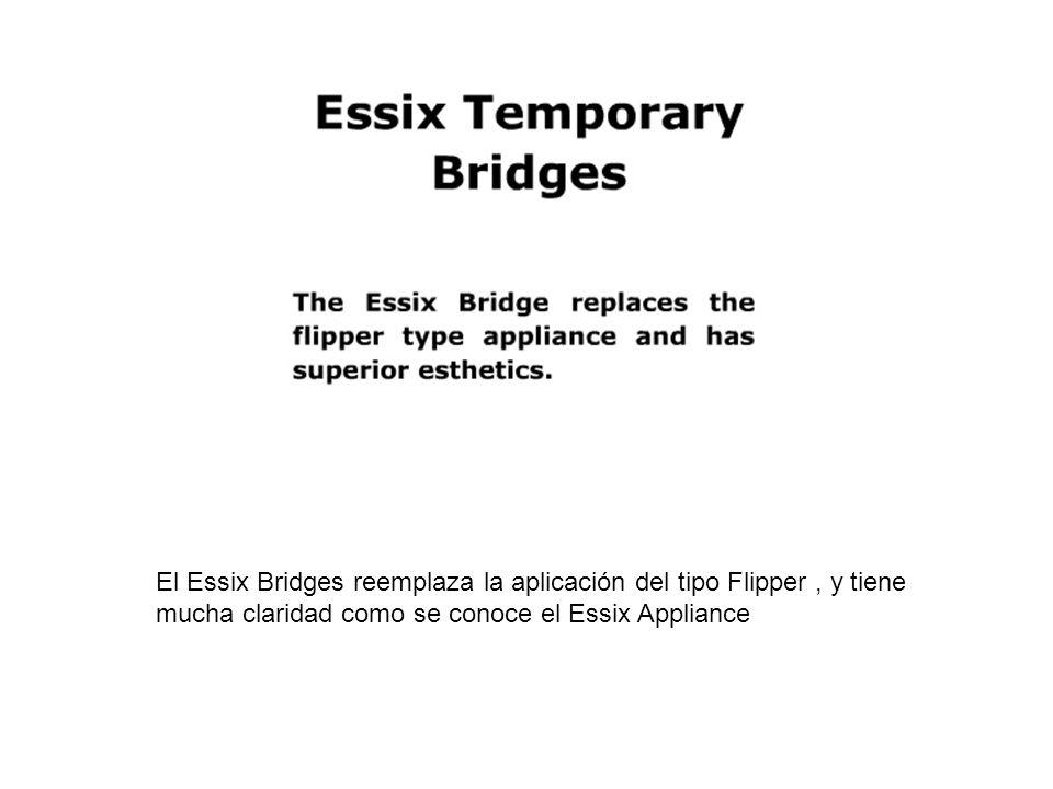 El Essix Bridges reemplaza la aplicación del tipo Flipper, y tiene mucha claridad como se conoce el Essix Appliance