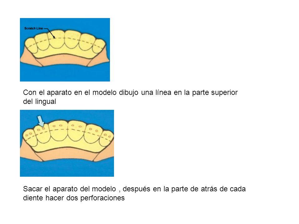 Con el aparato en el modelo dibujo una línea en la parte superior del lingual Sacar el aparato del modelo, después en la parte de atrás de cada diente