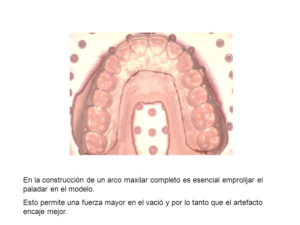 En la construcción de un arco maxilar completo es esencial emprolijar el paladar en el modelo. Esto permite una fuerza mayor en el vació y por lo tant