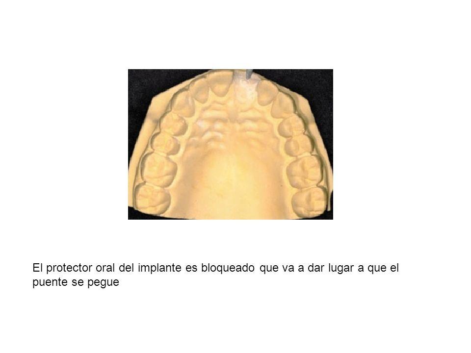 El protector oral del implante es bloqueado que va a dar lugar a que el puente se pegue