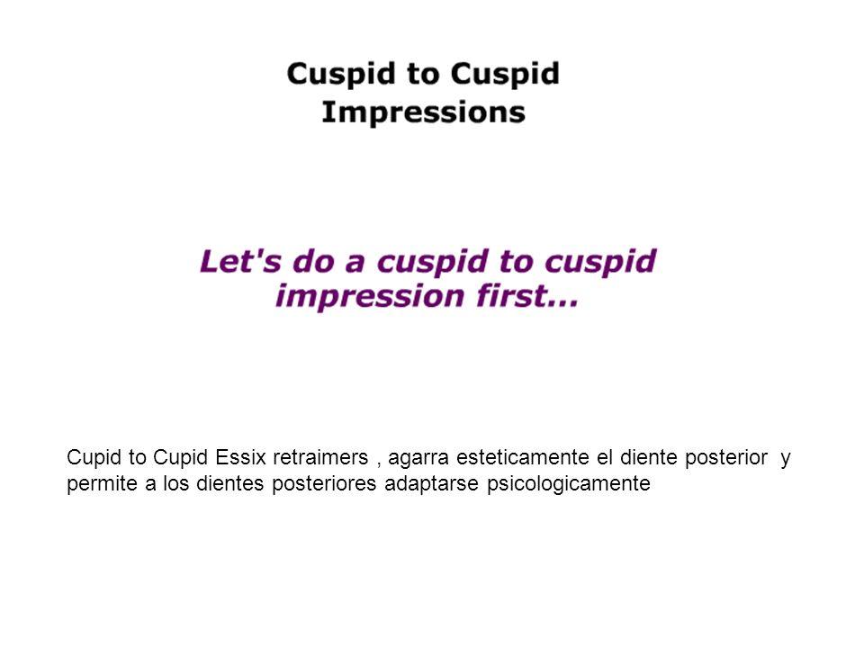 Cupid to Cupid Essix retraimers, agarra esteticamente el diente posterior y permite a los dientes posteriores adaptarse psicologicamente