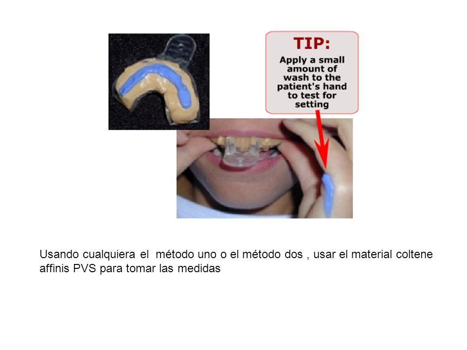 Usando cualquiera el método uno o el método dos, usar el material coltene affinis PVS para tomar las medidas