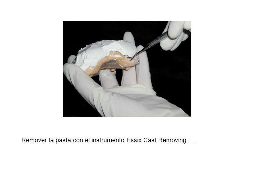 Remover la pasta con el instrumento Essix Cast Removing…..