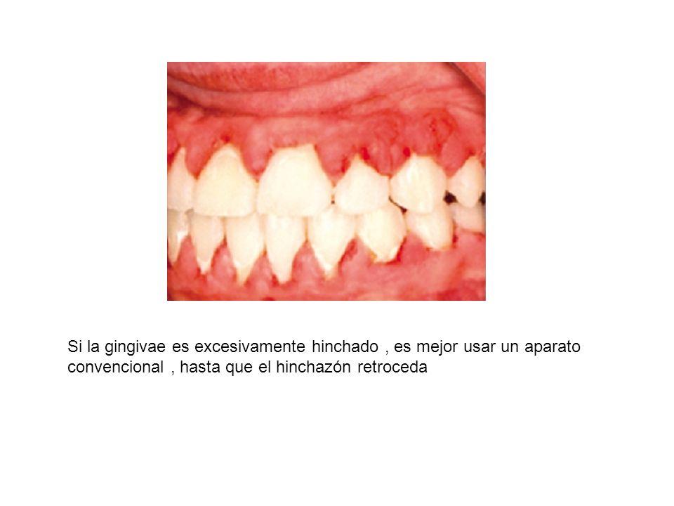 Si la gingivae es excesivamente hinchado, es mejor usar un aparato convencional, hasta que el hinchazón retroceda