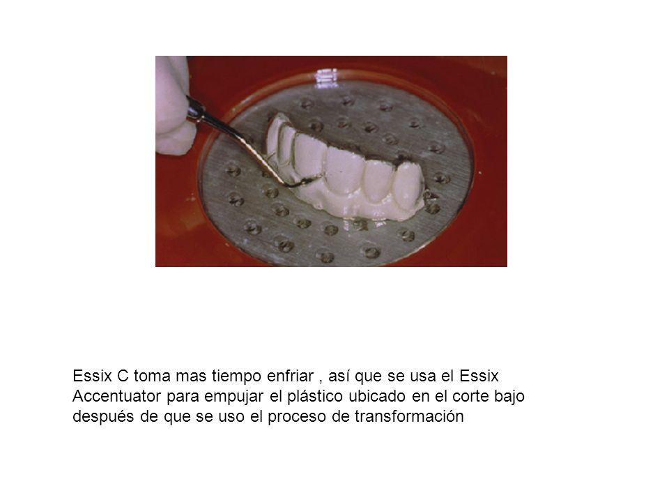 Essix C toma mas tiempo enfriar, así que se usa el Essix Accentuator para empujar el plástico ubicado en el corte bajo después de que se uso el proces