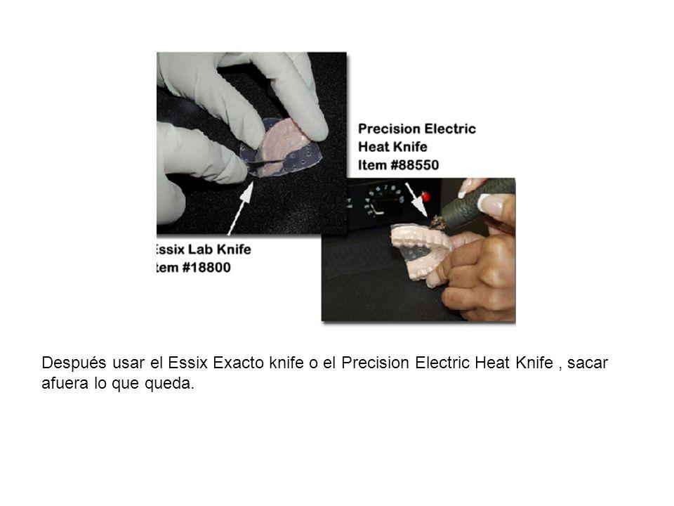 Después usar el Essix Exacto knife o el Precision Electric Heat Knife, sacar afuera lo que queda.
