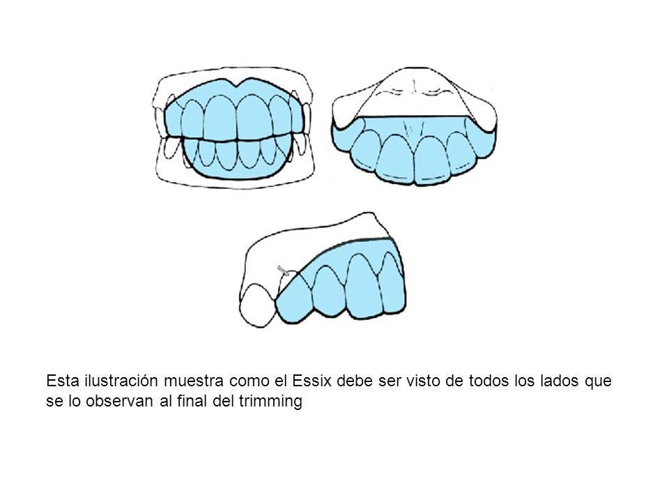 Esta ilustración muestra como el Essix debe ser visto de todos los lados que se lo observan al final del trimming