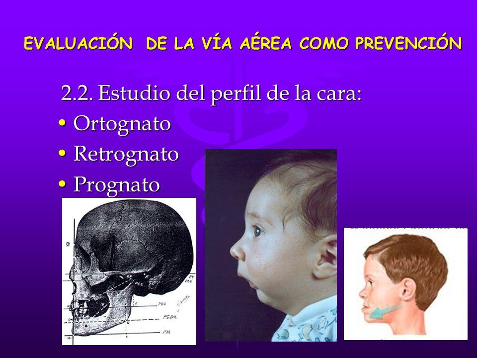 2.2. Estudio del perfil de la cara: 2.2. Estudio del perfil de la cara: OrtognatoOrtognato RetrognatoRetrognato PrognatoPrognato EVALUACIÓN DE LA VÍA