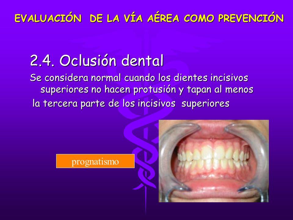 2.4. Oclusión dental Se considera normal cuando los dientes incisivos superiores no hacen protusión y tapan al menos la tercera parte de los incisivos