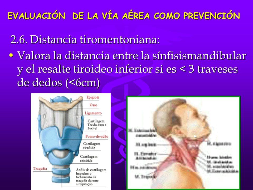 2.6. Distancia tiromentoniana: 2.6. Distancia tiromentoniana: Valora la distancia entre la sínfisismandibular y el resalte tiroideo inferior si es < 3