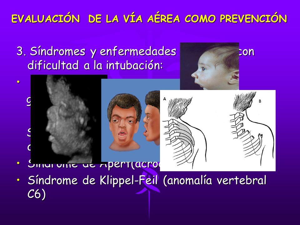 3. Síndromes y enfermedades asociadas con dificultad a la intubación: Pierre- Robin: Pierre- Robin: glosoptosis-micrognatia glosoptosis-micrognatia Sí