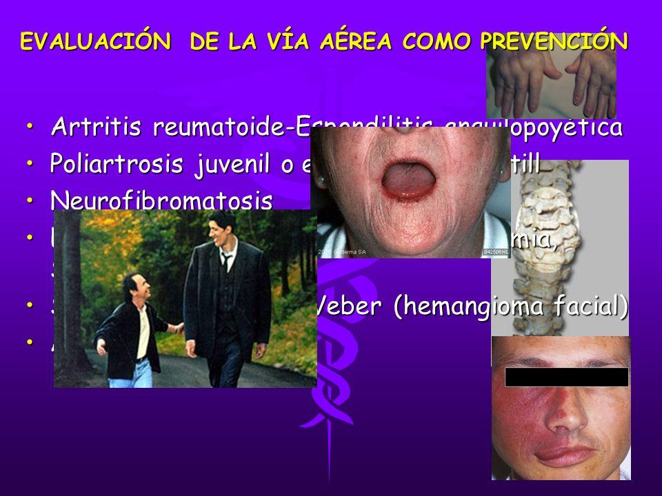 Artritis reumatoide-Espondilitis anquilopoyéticaArtritis reumatoide-Espondilitis anquilopoyética Poliartrosis juvenil o enfermedad de StillPoliartrosis juvenil o enfermedad de Still NeurofibromatosisNeurofibromatosis Enfermedades del colágeno:esclerodermia, Síndrome de CRESTEnfermedades del colágeno:esclerodermia, Síndrome de CREST Síndrome de Sturge-Weber (hemangioma facial)Síndrome de Sturge-Weber (hemangioma facial) AcromegaliaAcromegalia EVALUACIÓN DE LA VÍA AÉREA COMO PREVENCIÓN