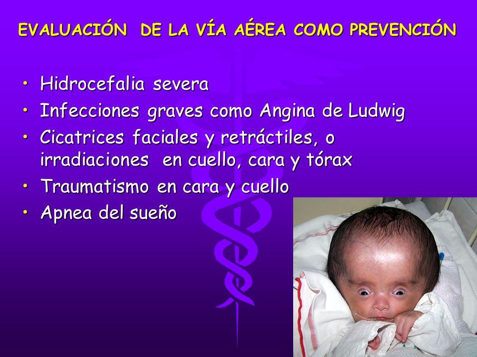 Hidrocefalia severaHidrocefalia severa Infecciones graves como Angina de LudwigInfecciones graves como Angina de Ludwig Cicatrices faciales y retrácti