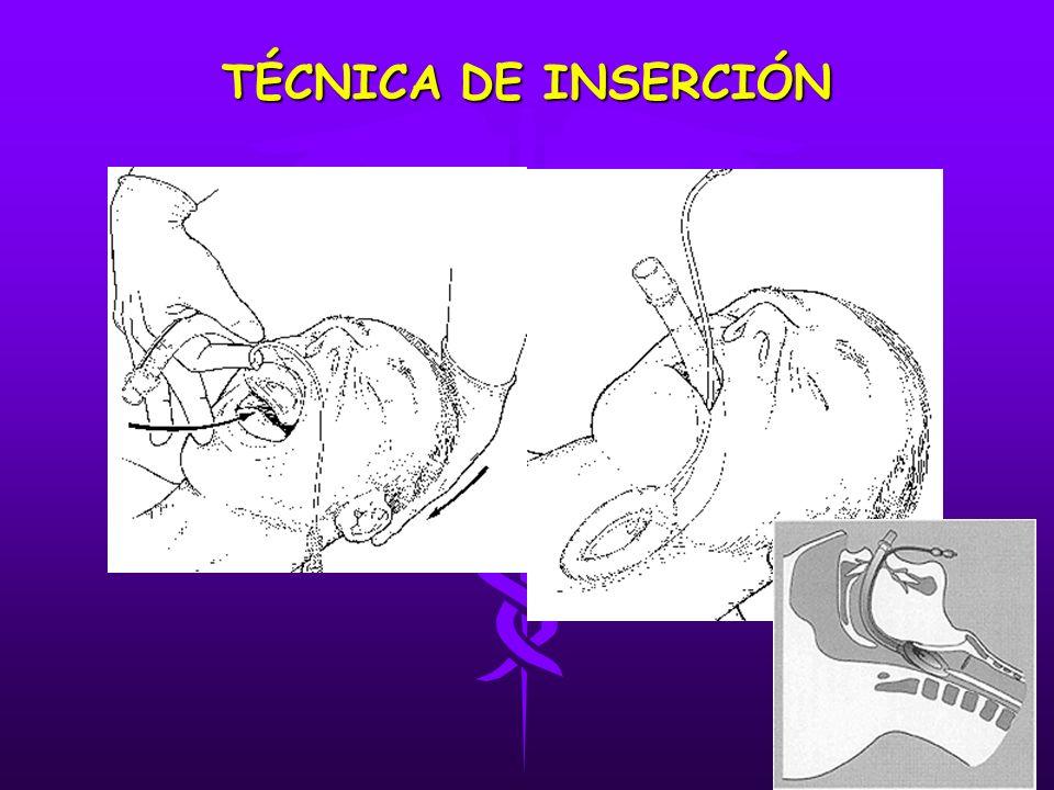 TÉCNICA DE INSERCIÓN