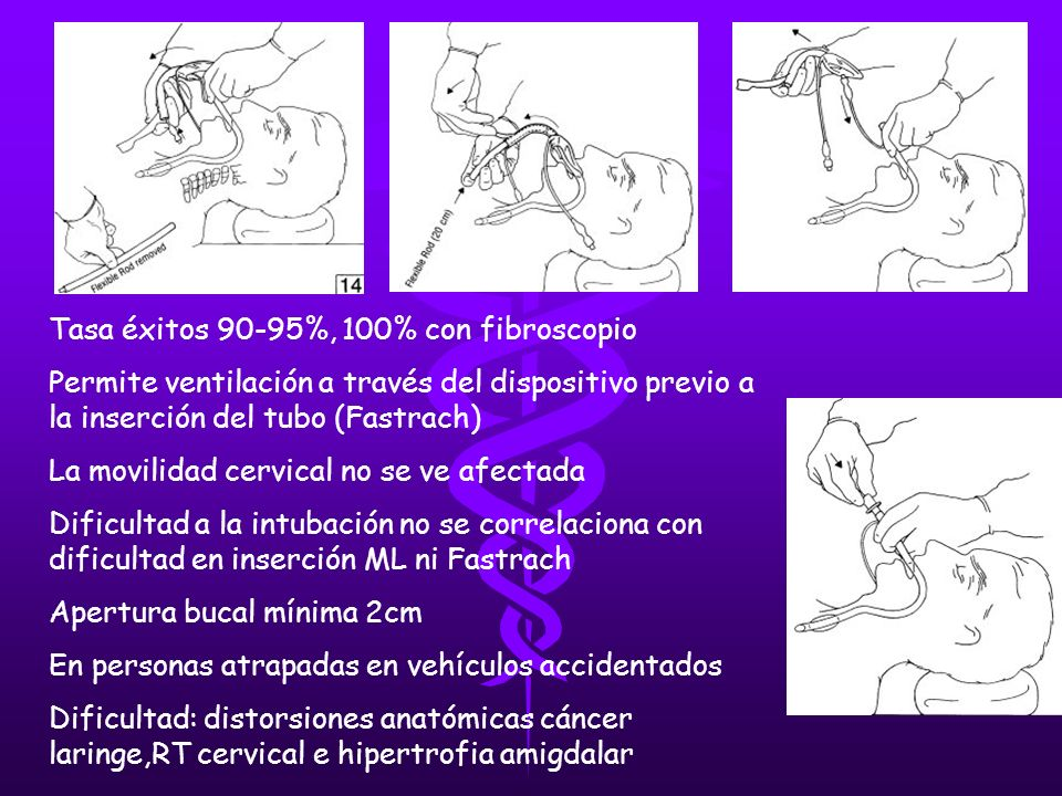 Tasa éxitos 90-95%, 100% con fibroscopio Permite ventilación a través del dispositivo previo a la inserción del tubo (Fastrach) La movilidad cervical