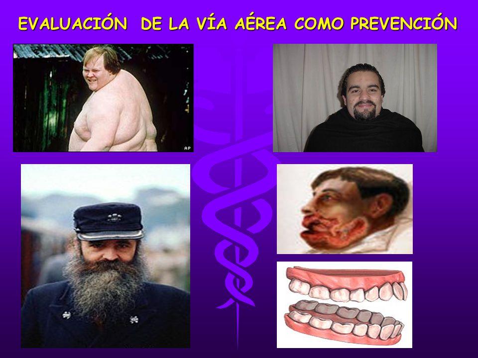EVALUACIÓN DE LA VÍA AÉREA COMO PREVENCIÓN