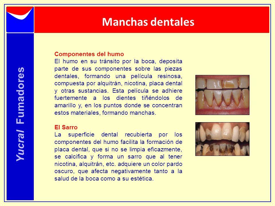 Manchas dentales Yucral Fumadores Componentes del humo El humo en su tránsito por la boca, deposita parte de sus componentes sobre las piezas dentales