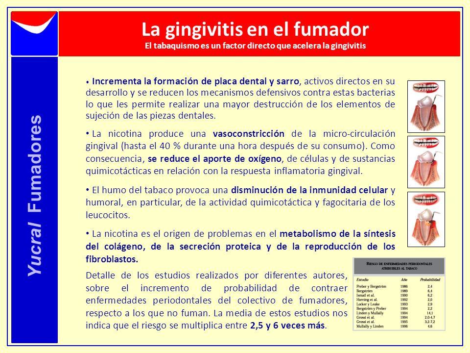 Yucral Fumadores La gingivitis en el fumador El tabaquismo es un factor directo que acelera la gingivitis Incrementa la formación de placa dental y sa