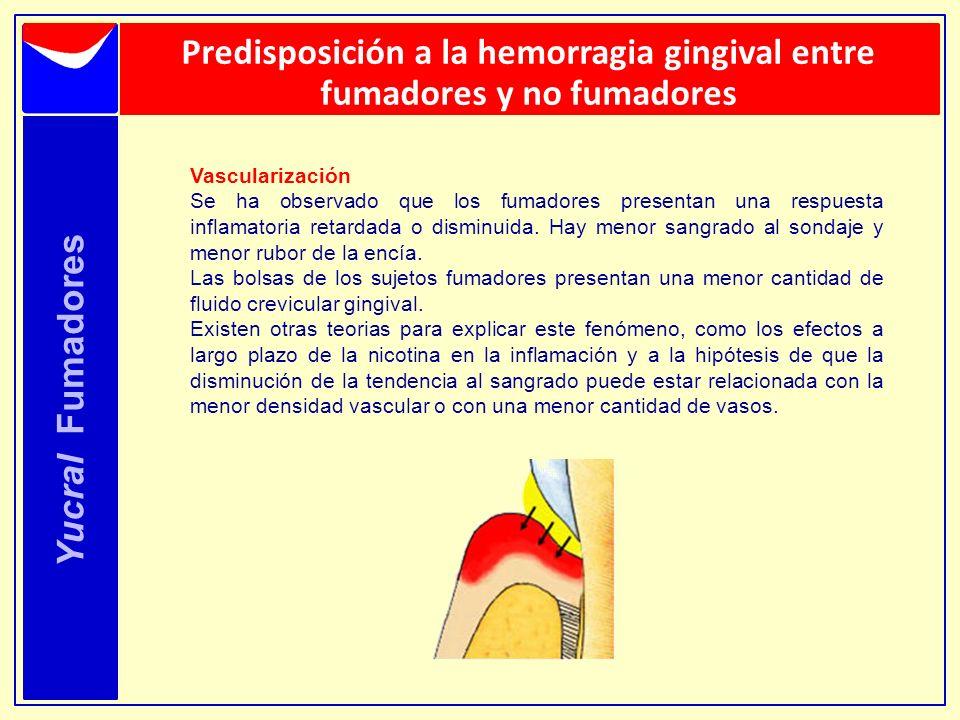 Yucral Fumadores Predisposición a la hemorragia gingival entre fumadores y no fumadores Vascularización Se ha observado que los fumadores presentan un