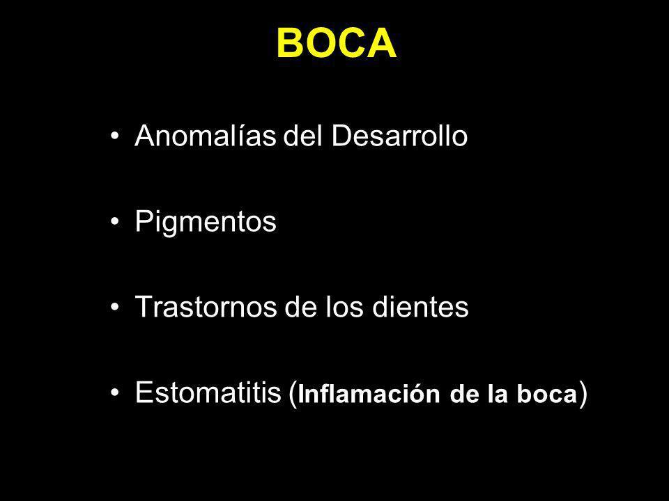 Anomalías del Desarrollo Pigmentos Trastornos de los dientes Estomatitis ( Inflamación de la boca )