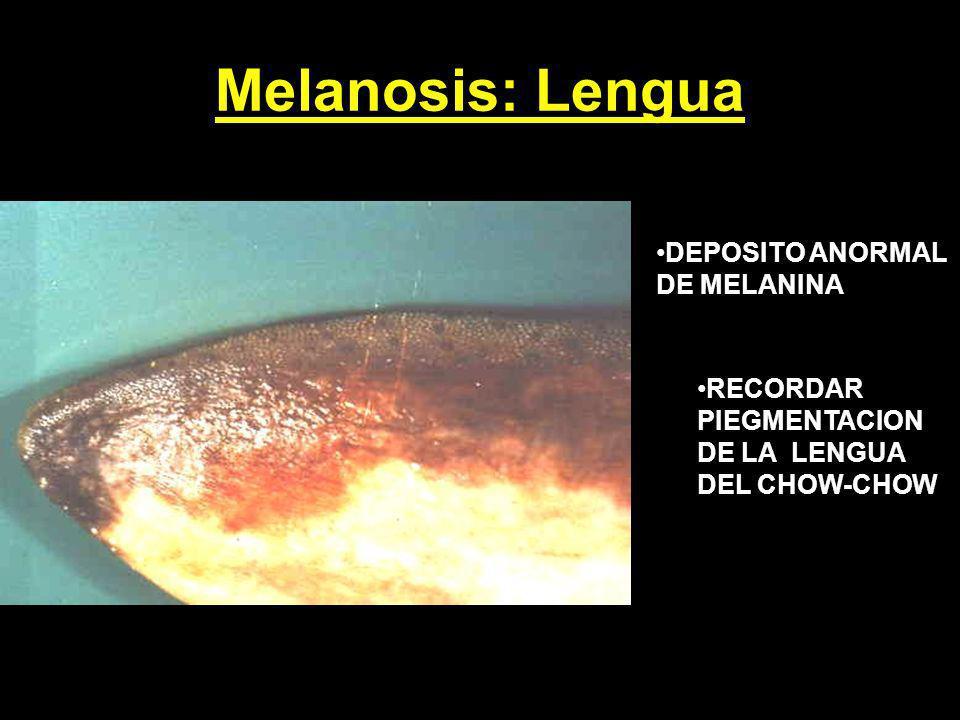 Melanosis: Lengua DEPOSITO ANORMAL DE MELANINA RECORDAR PIEGMENTACION DE LA LENGUA DEL CHOW-CHOW
