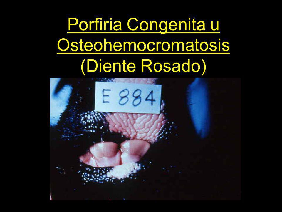 Porfiria Congenita u Osteohemocromatosis (Diente Rosado)