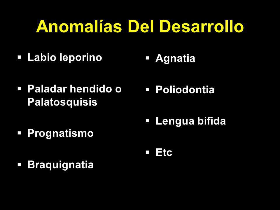 Anomalías Del Desarrollo Labio leporino Paladar hendido o Palatosquisis Prognatismo Braquignatia Agnatia Poliodontia Lengua bifida Etc