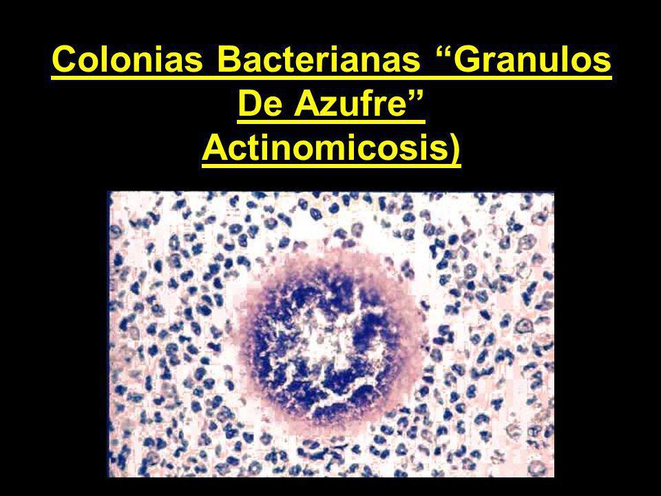 Colonias Bacterianas Granulos De Azufre Actinomicosis)