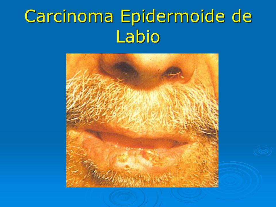 Carcinoma Epidermoide de Labio