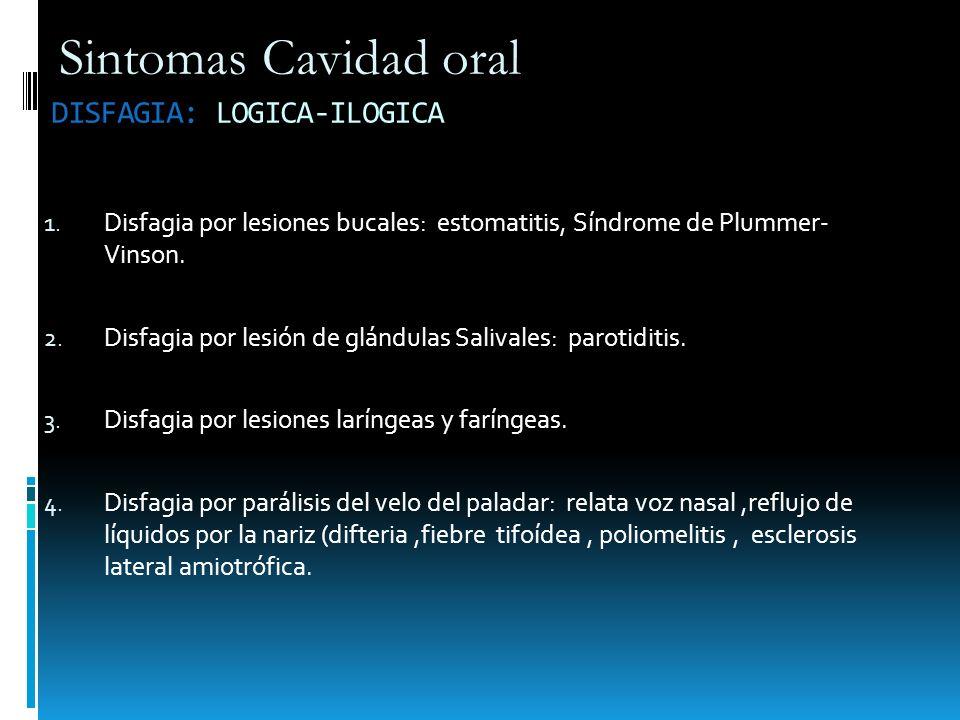 DISFAGIA: LOGICA-ILOGICA 1. Disfagia por lesiones bucales: estomatitis, Síndrome de Plummer- Vinson. 2. Disfagia por lesión de glándulas Salivales: pa