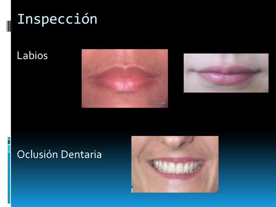 Inspección Labios Oclusión Dentaria