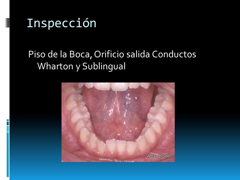 Inspección Piso de la Boca, Orificio salida Conductos Wharton y Sublingual