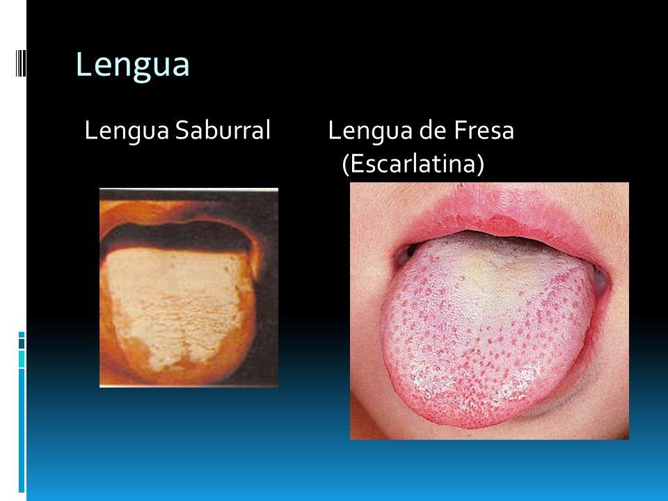 Lengua Lengua Saburral Lengua de Fresa (Escarlatina)