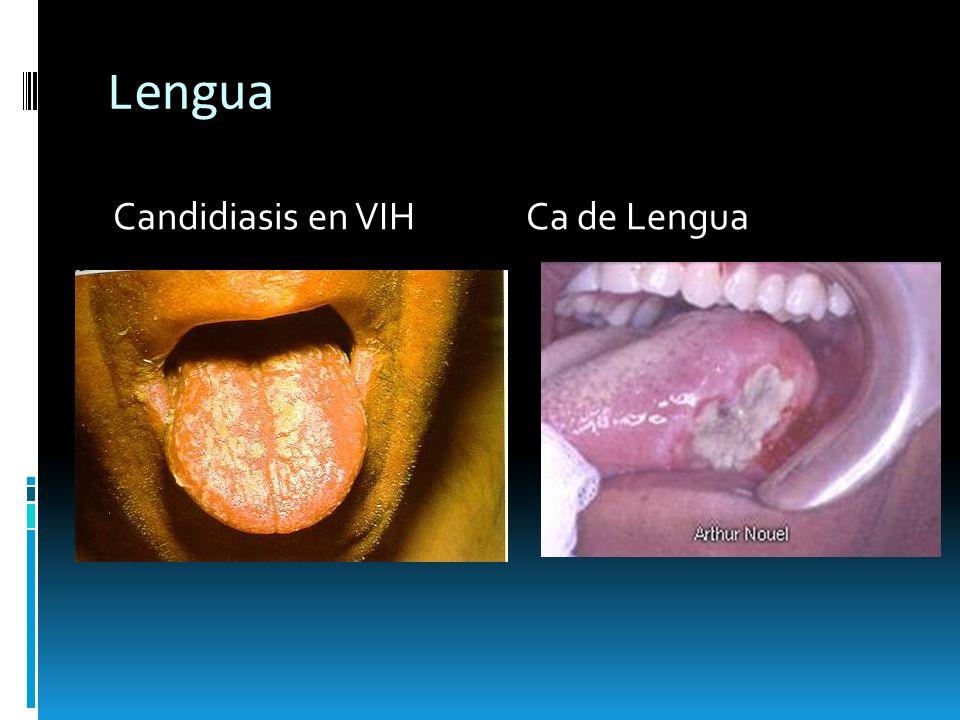 Lengua deshidratación microglosia macroglosia Frenillo sublingual