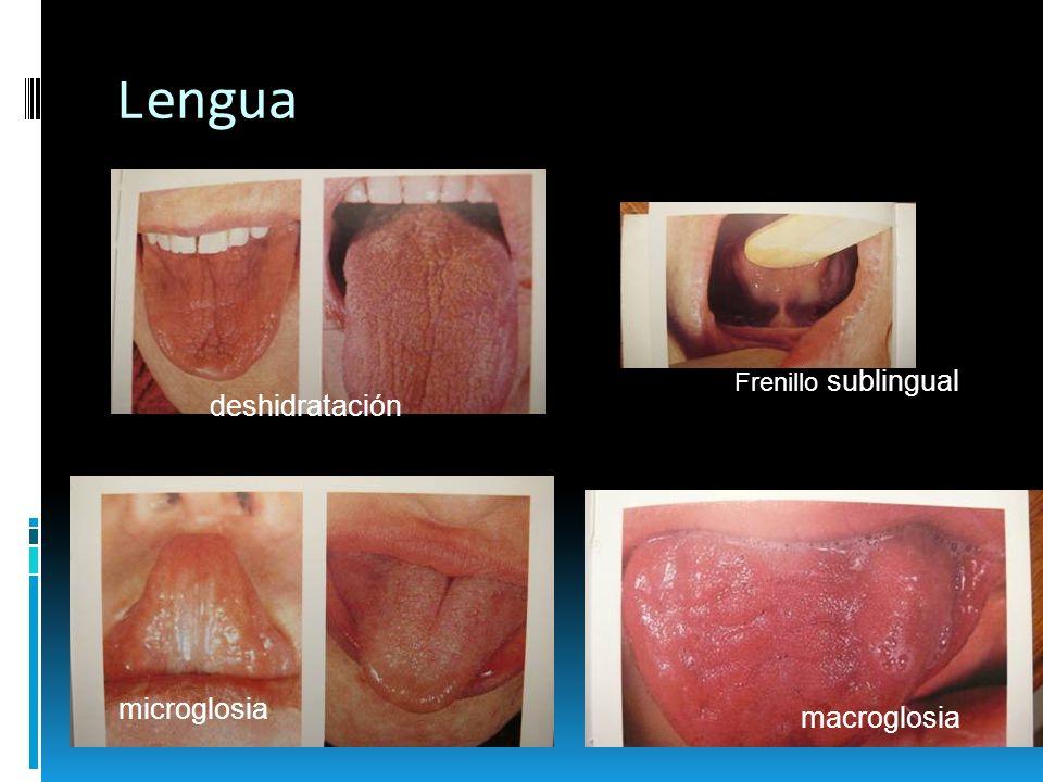 Lengua afta varicela Herpes simple