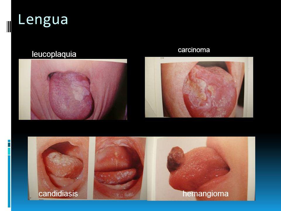 Lengua leucoplaquia carcinoma hemangiomacandidiasis