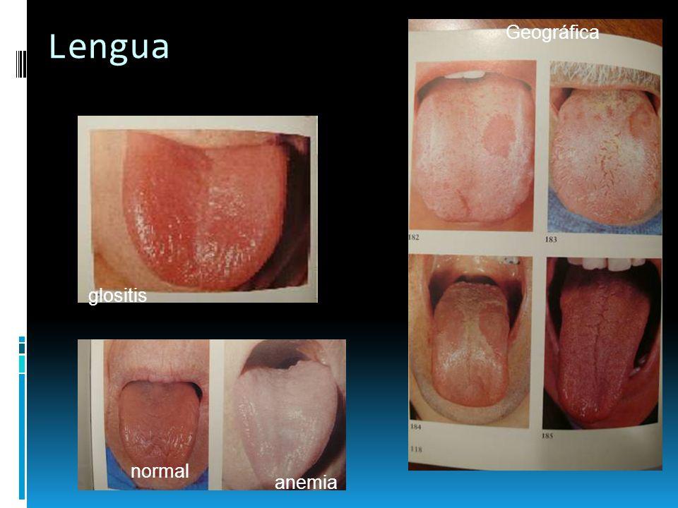 Mucosa Yugal Manchas de Koplik Ca Escamoso (Sarampión)