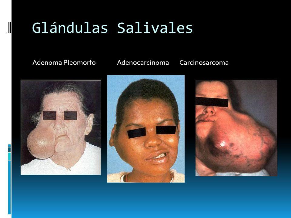 Glándulas Salivales Adenoma Pleomorfo Adenocarcinoma Carcinosarcoma