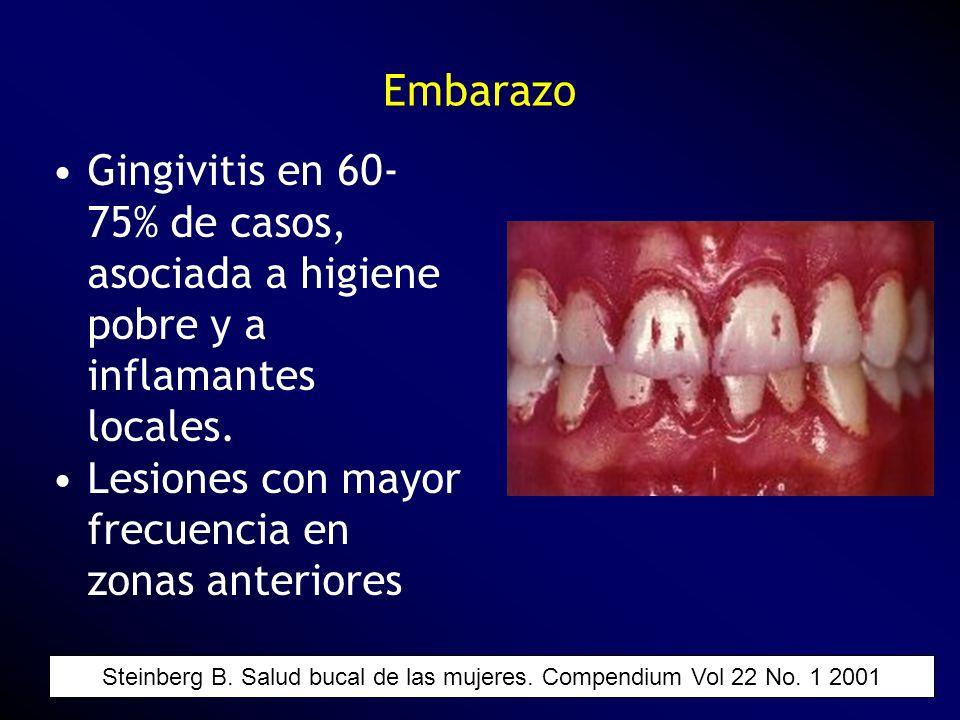 Embarazo Gingivitis en 60- 75% de casos, asociada a higiene pobre y a inflamantes locales. Lesiones con mayor frecuencia en zonas anteriores Steinberg