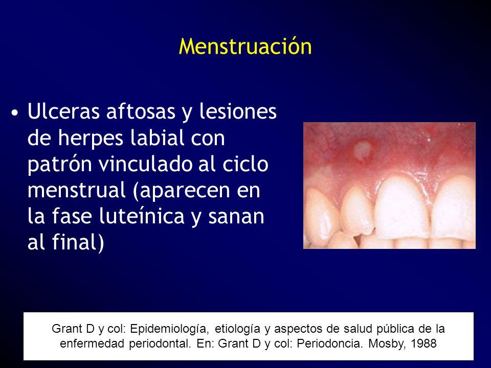 Ulceras aftosas y lesiones de herpes labial con patrón vinculado al ciclo menstrual (aparecen en la fase luteínica y sanan al final) Grant D y col: Ep