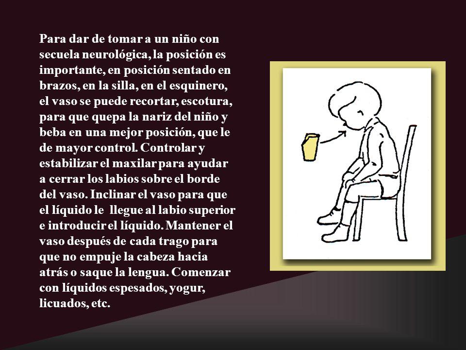 Para dar de tomar a un niño con secuela neurológica, la posición es importante, en posición sentado en brazos, en la silla, en el esquinero, el vaso s