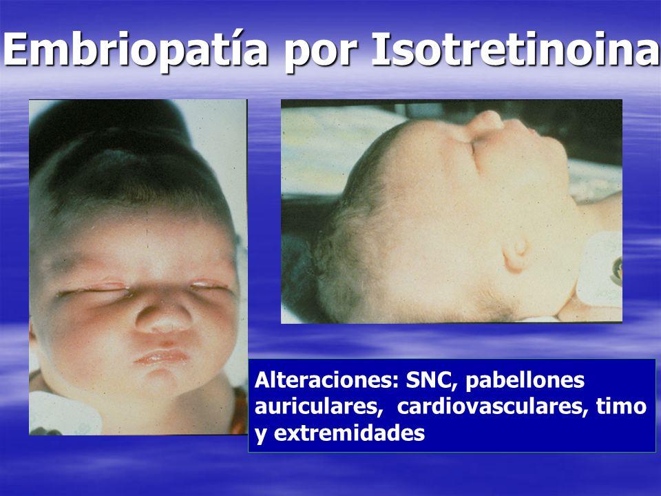 Embriopatía por Isotretinoina Alteraciones: SNC, pabellones auriculares, cardiovasculares, timo y extremidades