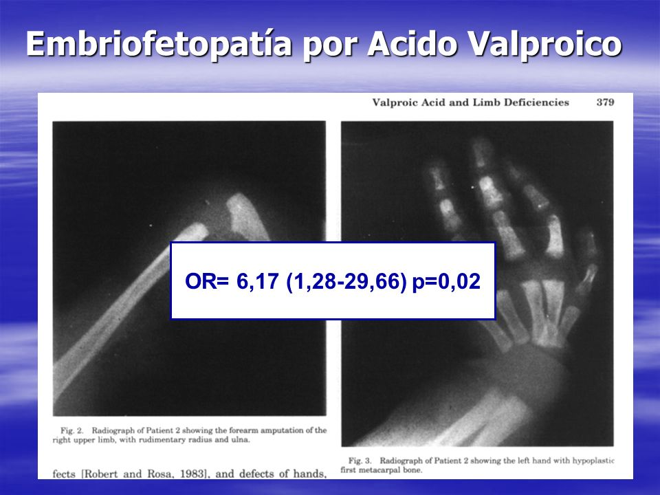 Embriofetopatía por Acido Valproico OR= 6,17 (1,28-29,66) p=0,02