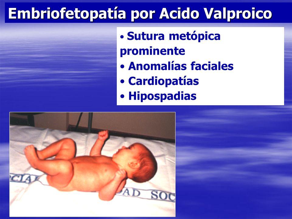 Embriofetopatía por Acido Valproico Sutura metópica prominente Anomalías faciales Cardiopatías Hipospadias