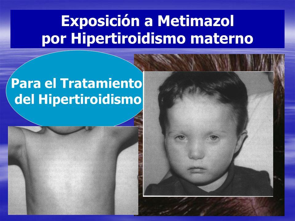 Exposición a Metimazol por Hipertiroidismo materno Para el Tratamiento del Hipertiroidismo