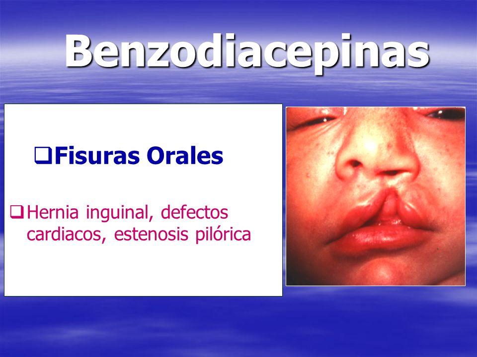 Fisuras Orales Hernia inguinal, defectos cardiacos, estenosis pilórica Benzodiacepinas