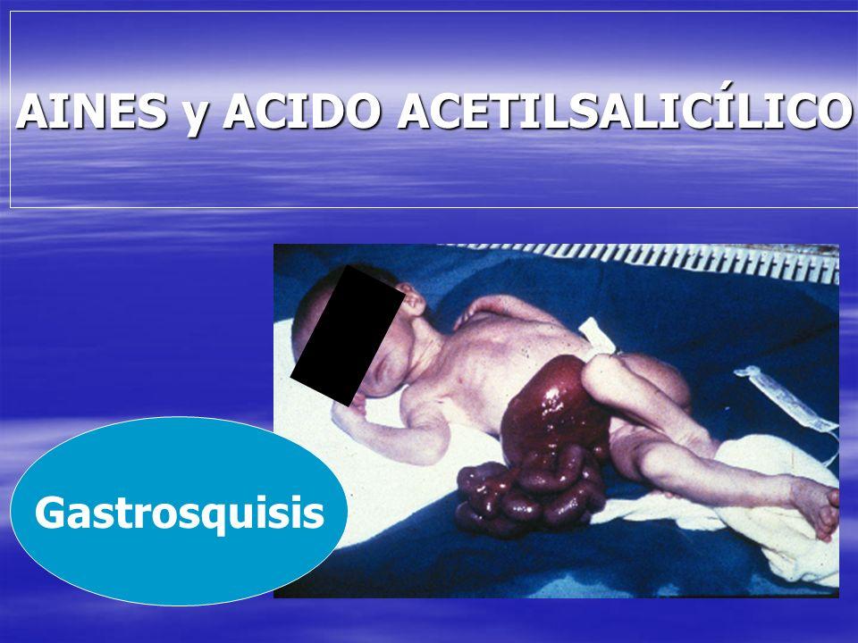 AINES y ACIDO ACETILSALICÍLICO Gastrosquisis