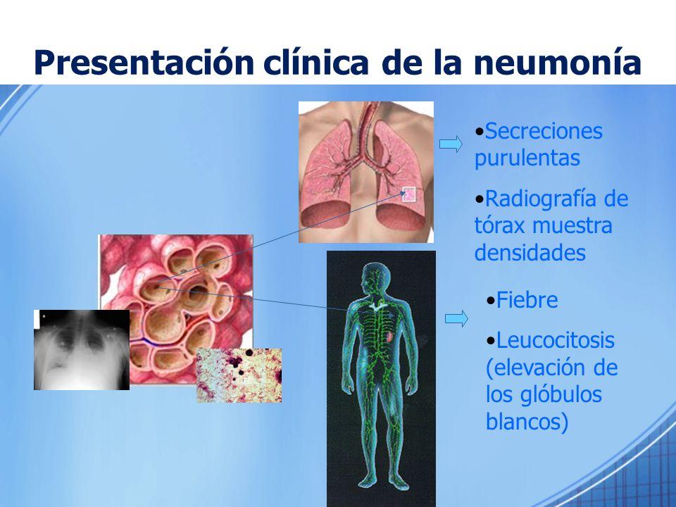 Secreciones purulentas Radiografía de tórax muestra densidades Fiebre Leucocitosis (elevación de los glóbulos blancos) Presentación clínica de la neum